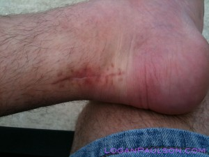 Scar from ruptured achilles tendon surgery to reconnect torn tendon